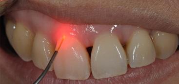 Medical Laser for ENDODONTICS And PERIODONTICS