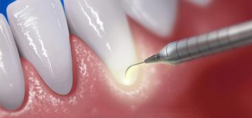 Lasers Fibers for Pediatric Dental Patients