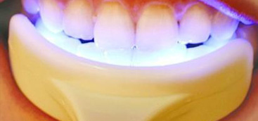 Clinical effect analysis of whitening dental fluorosis with Nd:YAG laser