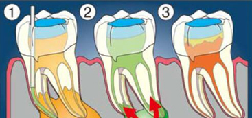 Regeneration Approaches for Dental Pulp and Periapical Tissues with Growth Factors, Biomaterials, and Laser Irradiation