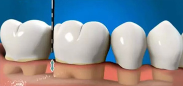 The Development Situation of Material Based on Dental Implant