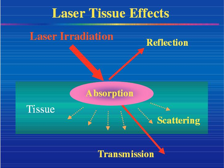 dental laser tips