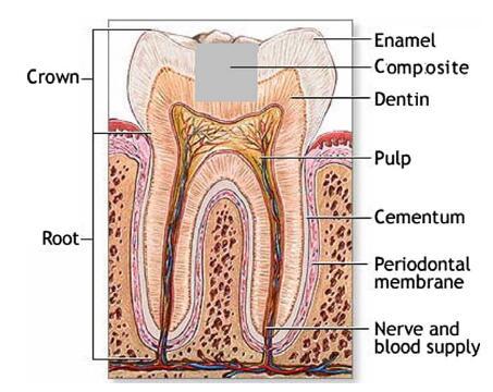 dental laser tips