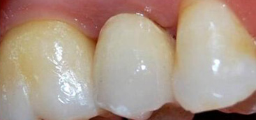 A novel root analogue dental implant using CT scan and CAD/CAM: selective laser melting technology