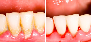 Non surgical periodontal treatment in patients with gingivitis  and moderate periodontitis.