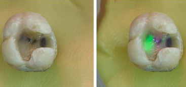 Laser-induced fluorescence to discriminate between a dental composite resin and tooth