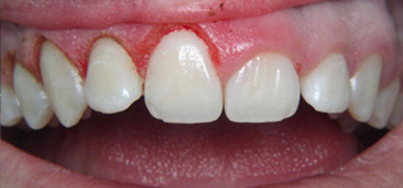 Researchers suggest benefits of using lasers in oral debridement to prevent dental problems