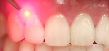 The Versatility and Practicality of an All-Tissue Dental Laser