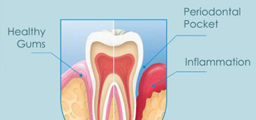 Maxillary Second Molar with Single Root and Single Canal―Case Report