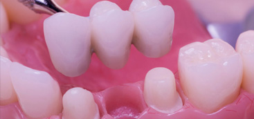 Dental Implants Market to Reach a Valuation of US$ 7,879.5 Million by 2020