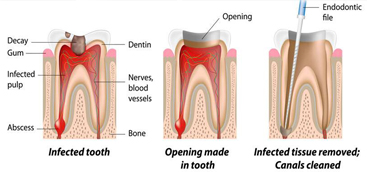 Groundbreaking advances in dental treatment  could regenerate teeth rather than replace them.