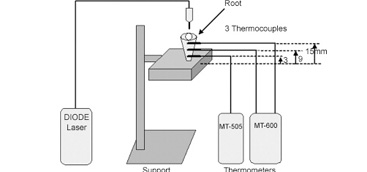 Temperature variation at the external root surface during 980-nm diode laser irradiation in the root canal