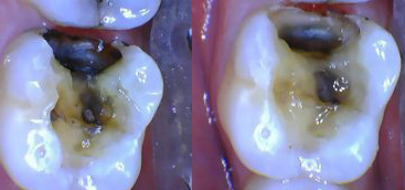 Changing the patient experience: Using a CO(2) laser to remove an amalgam dental restoration without anesthesia